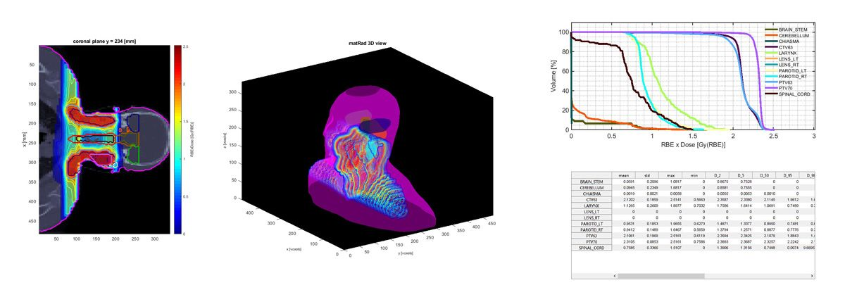 Figure 4. Visualizations generated in matRad. Left: CT and planned proton dose in the coronal plane of a head-and-neck cancer case. Center: 3D rendering of the same visualization. Right: Sample dose histograms and statistics tables.