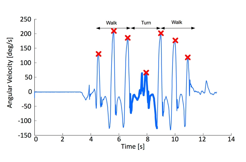 Figure 3. Plot showing peak angular velocities during a TUG test.