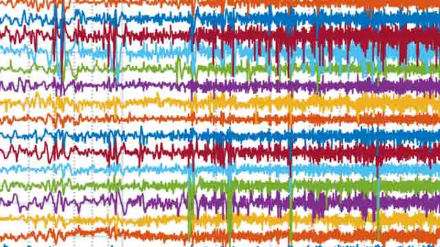Using Machine Learning to Predict Epileptic Seizures from EEG Data