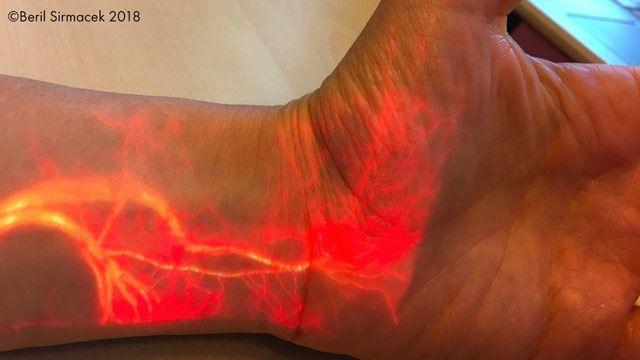 Proyección de realidad aumentada del flujo sanguíneo.