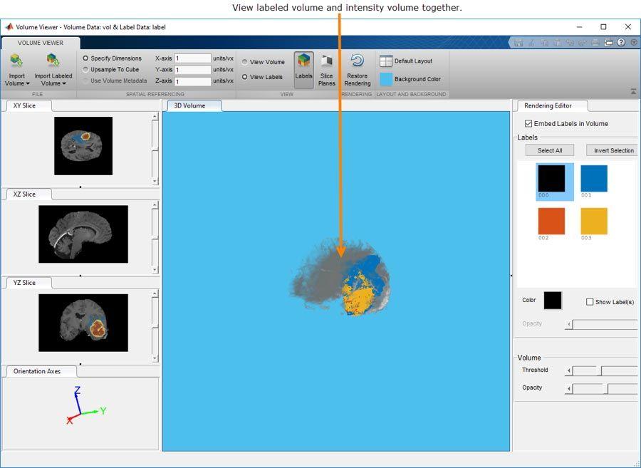 La app Volume Viewer permite visualizar datos volumétricos 3D etiquetados o sin etiquetar e interactuar con ellos.