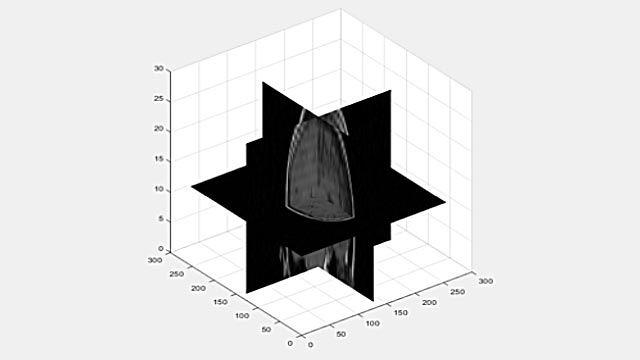 Visualización de un volumen 3D como secciones 2D.
