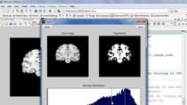 In this webinar, you will learn how to use MATLAB to solve problems using CT, MRI and fluorescein angiogram images.